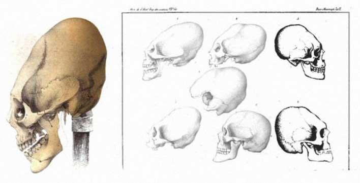 удлиненные черепа людей
