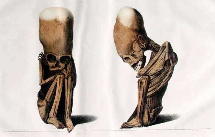 мумия с удлиненным черепом