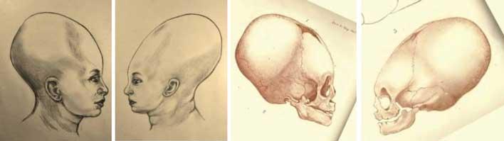 человек с удлиненным черепом