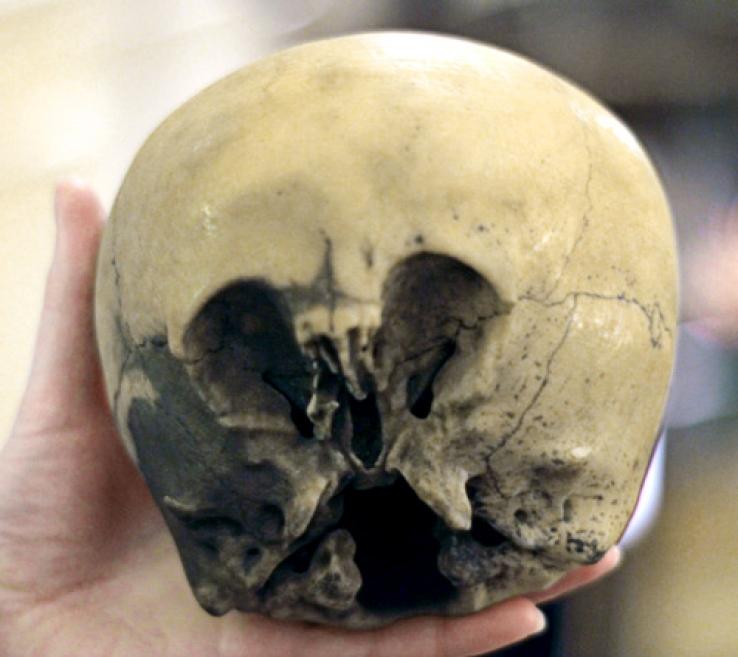 Череп звездного ребенка, который был найден в Мексике в 1930 году