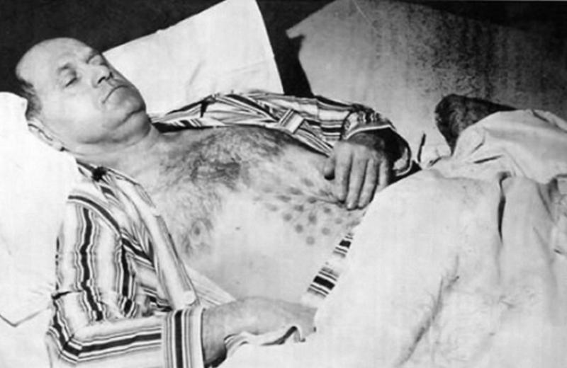 Стефан Михалак в больнице со следами ожогов на животе